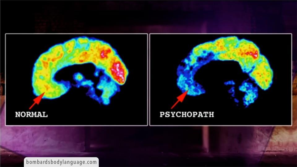 Body Language - Jim Fallon Neuroscientist Of Psychopaths